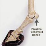 The two sesamoid bones Ruffian shattered